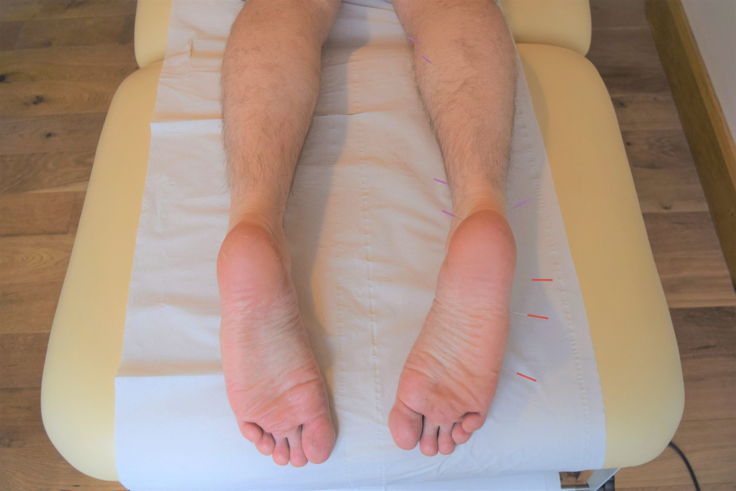 Acupuncture, foot pain, heel pain and plantar fasciitis
